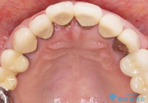セラミック下に再発した虫歯治療の治療前