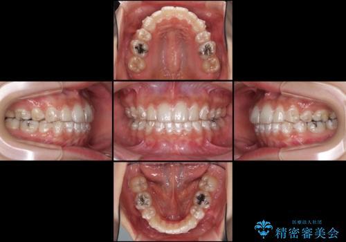 抜歯矯正の後戻りをインビザラインできれいにの治療中