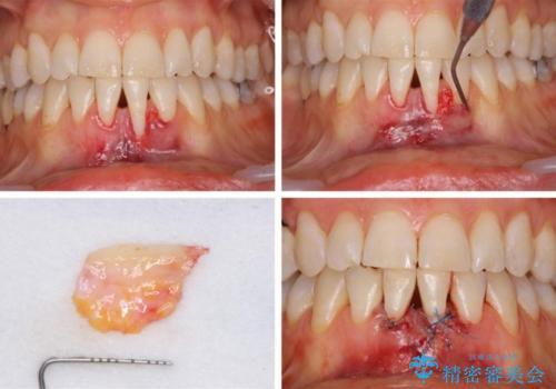前歯の歯肉退縮 歯肉移植による根面被覆の治療中