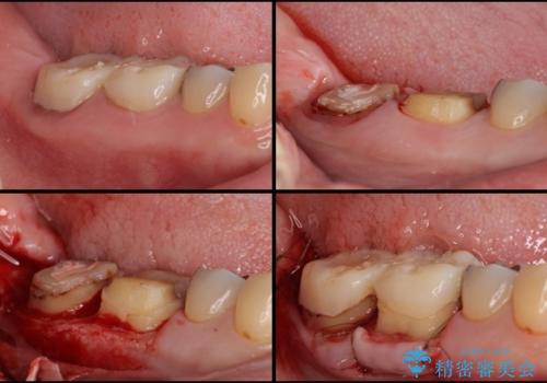 歯医者嫌いで歯がボロボロに 外科処置を用いた抜かない補綴治療の治療中