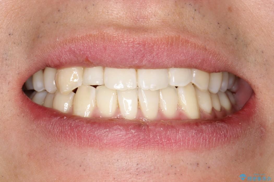 ハーフリンガルによるガタつきの矯正治療の治療後(顔貌)