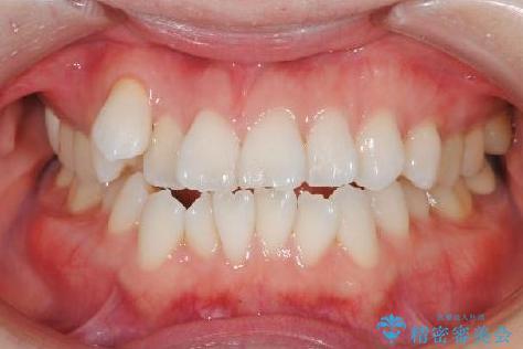 歯を抜かずに八重歯をきれいに! インビザラインによる全顎矯正治療の治療前