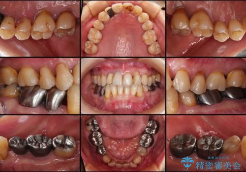 どんなに歯を磨いても治らない 重度歯周病患者の治療の治療前