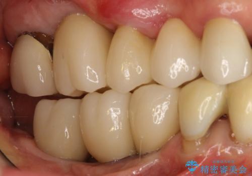 長すぎるブリッジをインプラントで一新する ショートインプラントによる咬合回復の症例 治療後
