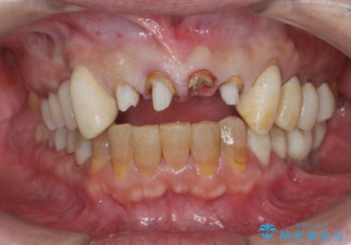 多発した深い虫歯 歯周外科による歯肉改善セラミック補綴の治療前