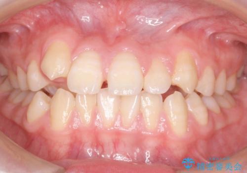 右だけ八重歯 右だけ抜歯の症例 治療前