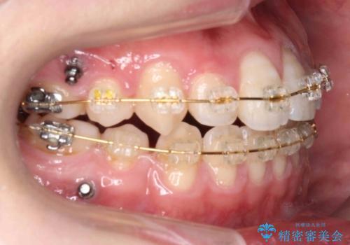 右だけ八重歯 右だけ抜歯の治療中
