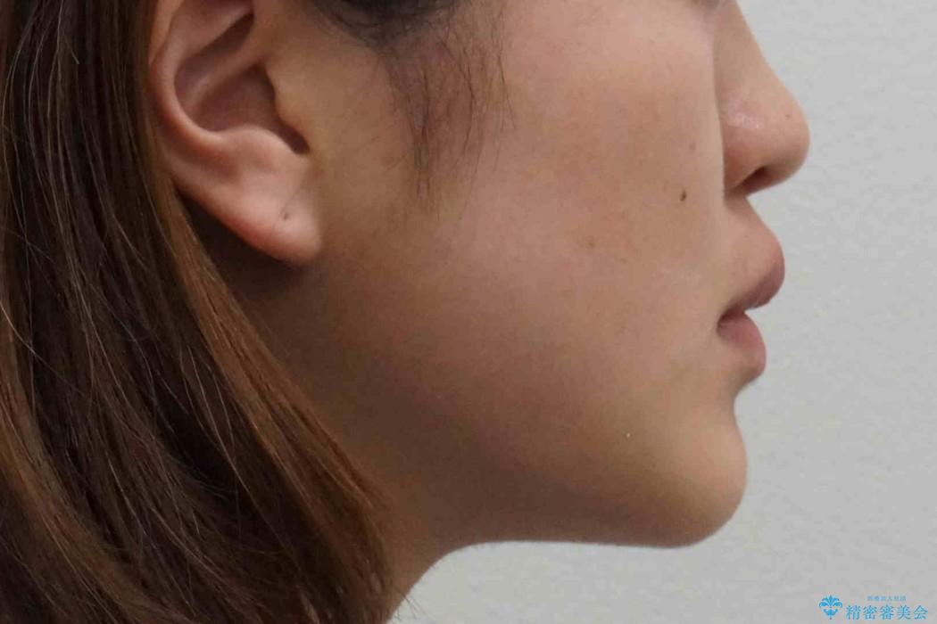 右だけ八重歯 右だけ抜歯の治療後(顔貌)