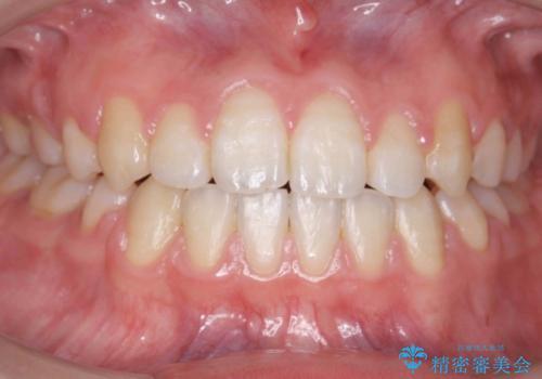 右だけ八重歯 右だけ抜歯の症例 治療後