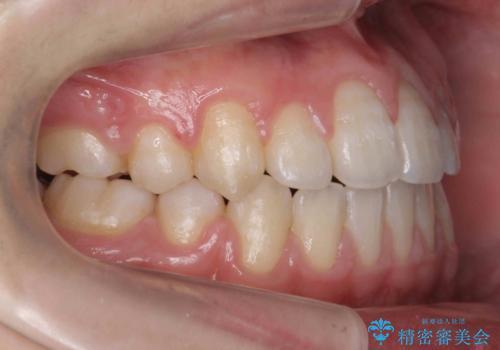 右だけ八重歯 右だけ抜歯の治療後