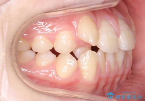 右だけ八重歯 右だけ抜歯の治療前
