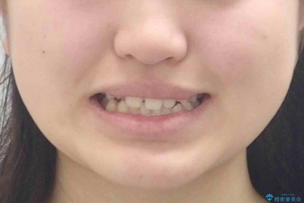 右だけ八重歯 右だけ抜歯の治療前(顔貌)