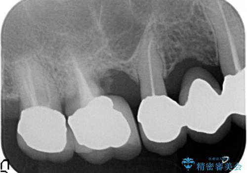 上の奥歯が保存不可能に→サイナスソケットリフトで薄い骨にも対応の治療前