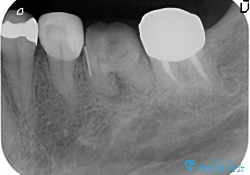 オールセラミッククラウン 奥歯の治療の治療前