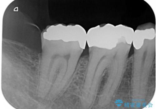 歯周外科を併用したセラミックインレー修復の治療前