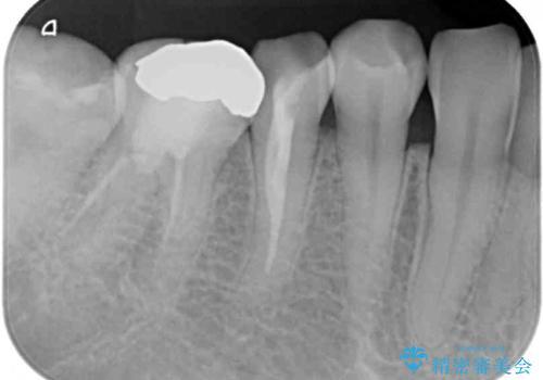 詰め物が取れた 神経の取り除かれた歯のクラウンによる補綴治療の治療前