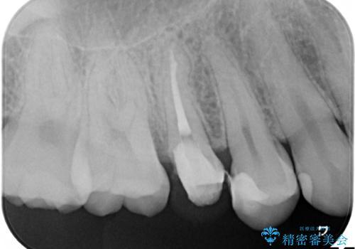 神経に達する深い虫歯 根管治療とかぶせもの治療の治療中