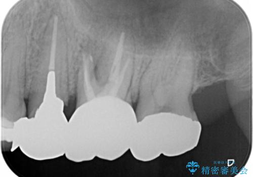 根管治療からやり直し 奥歯の被せ物までの治療後