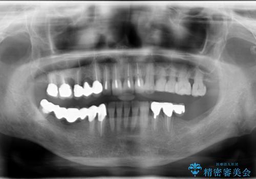 長すぎるブリッジをインプラントで一新する ショートインプラントによる咬合回復の治療前