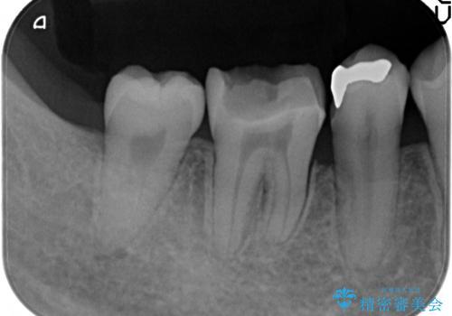 銀歯が取れた。隣の歯も一緒に白いセラミックインレーへ。の治療前