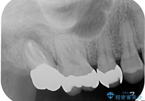 咬んだ時の痛みを訴え→根管治療の見直しと、その後の被せものの処置の治療後