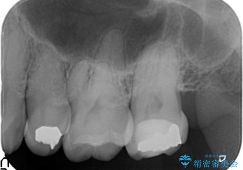 40代女性 全体的にしっかり虫歯を治療したい の治療前