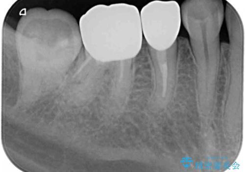 詰め物が取れた 神経の取り除かれた歯のクラウンによる補綴治療の治療後