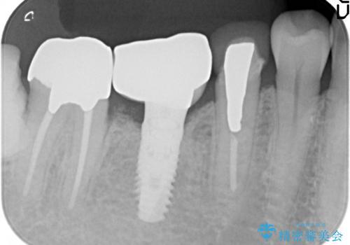 オールセラミッククラウン 歯茎との隙間が気になる被せ物の修復の治療前