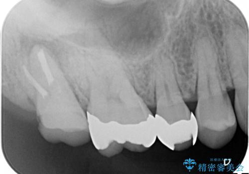 咬んだ時の痛みを訴え→根管治療の見直しと、その後の被せものの処置の治療前