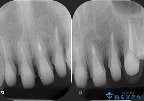 多発した深い虫歯 歯周外科による歯肉改善セラミック補綴の治療中
