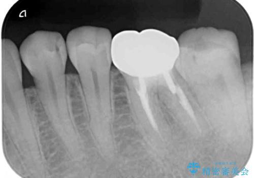セラミックインレーによる早期発見の虫歯治療の治療前