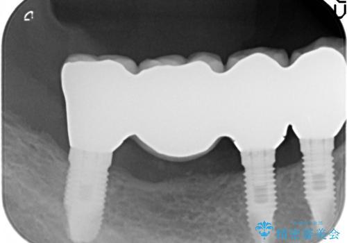 骨幅の薄いインプラント 骨造成を行い同時にインプラント埋入の治療後