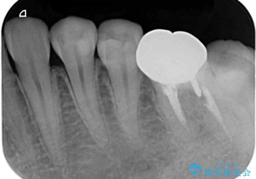 セラミックインレーによる早期発見の虫歯治療の治療後