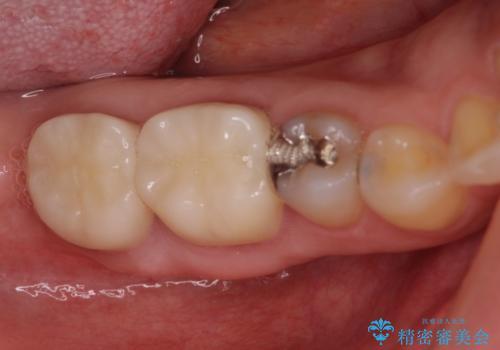歯医者嫌いで歯がボロボロに 外科処置を用いた抜かない補綴治療の治療後