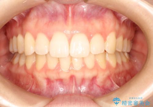 叢生(でこぼこ・八重歯)の症例 治療後