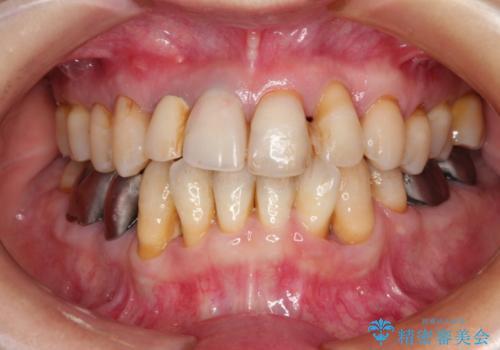 歯周病治療&セラミック治療の症例 治療前