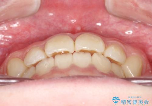 インビザラインによる受け口の治療 機能性反対咬合の経過の治療後