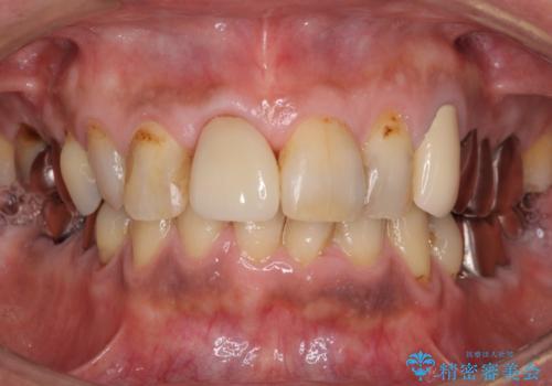 前歯がとれた 残った小さい歯を引っ張り出して保存するの治療後