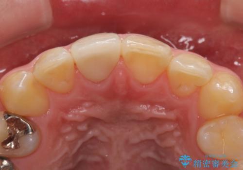 仮歯がすぐ外れる 前歯を治したい 転院希望の治療後