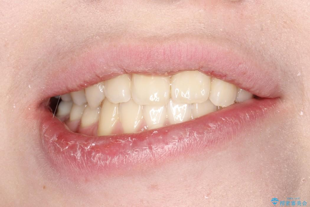 インビザラインによる受け口の治療 機能性反対咬合の経過の治療後(顔貌)