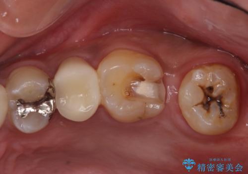 左上奥歯の虫歯 白い詰め物セラミックインレーの治療中