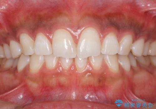 結婚式前にPMTCとホワイトニングで歯を白くの症例 治療後
