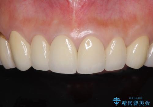 金属の色が見える前歯をオールセラミックにの治療後