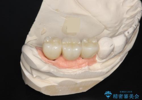 長すぎるブリッジをインプラントで一新する ショートインプラントによる咬合回復の治療後