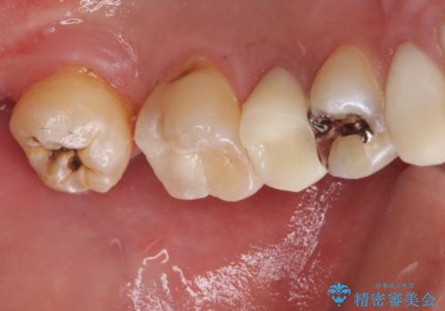 左上奥歯の虫歯 白い詰め物セラミックインレーの治療後