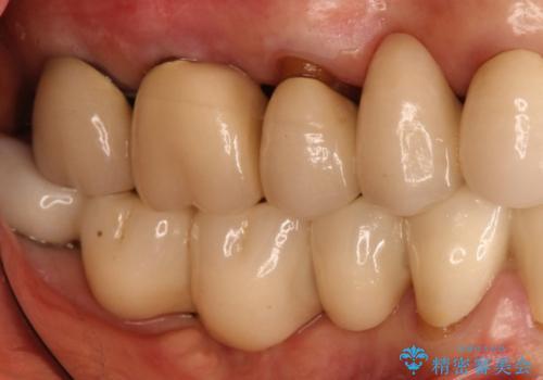 長すぎるブリッジをインプラントで一新する ショートインプラントによる咬合回復の症例 治療前