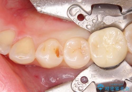 セラミックインレーによる早期発見の虫歯治療の治療中
