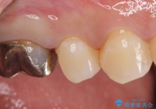 セラミックインレー 被せ物が取れた歯の治療の治療中