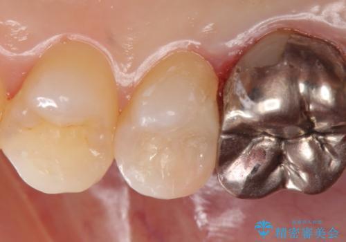 セラミックインレー 被せ物が取れた歯の治療の治療後