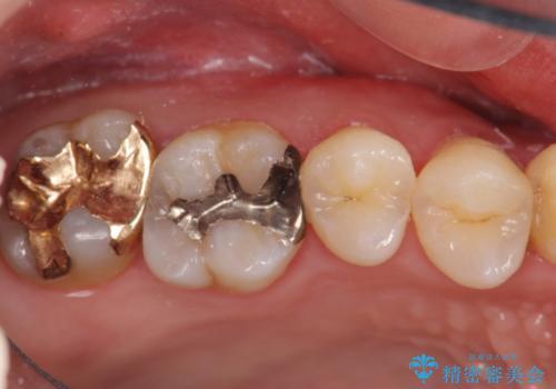 保険の銀歯をゴールドへ PGA インレーの治療前